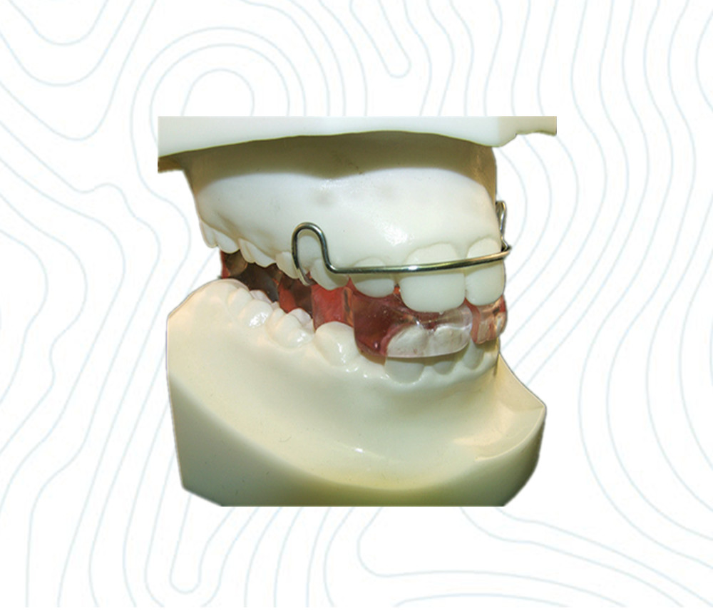 Bionator Appliance Ortholab China Orthodontic Laboratory