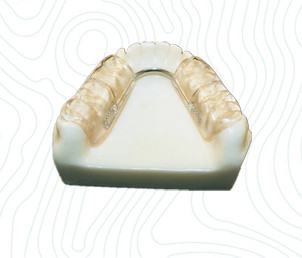 orthodontic gelb splint