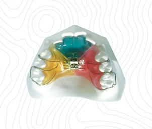 orthodontic 3way expander appliance