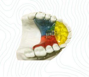 orthodontic 3 way appliance