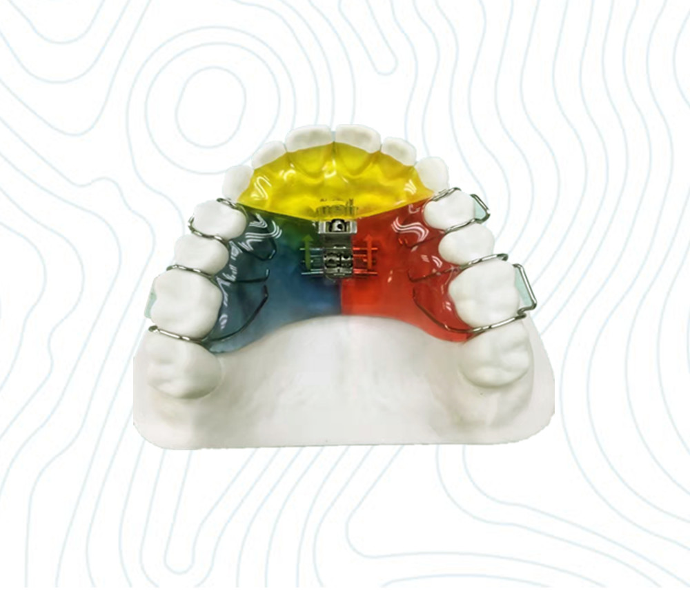 orthodontic 3 way appliance