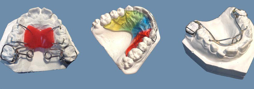 high quality orthodontic appliance