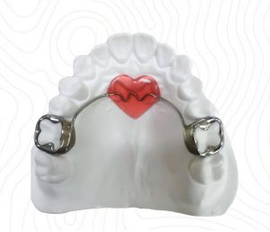 orthodontic nance appliance