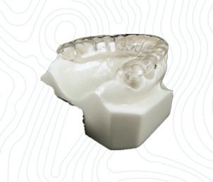 orthodontic bruxism