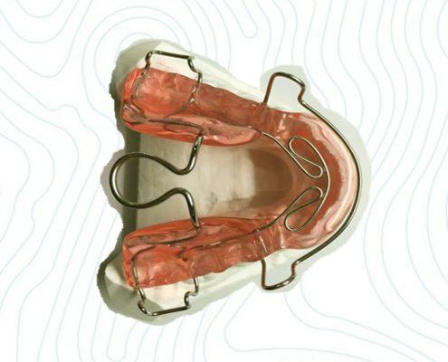 orthodontic bionator appliance