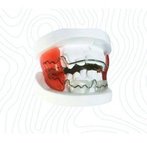 orthodontic frankel appliance