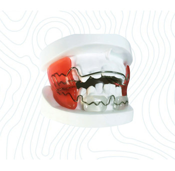 orthodontic frankel appliance