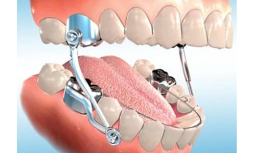 orthodontic herbst appliance