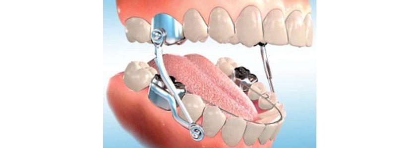 orthodontic herbst appliance