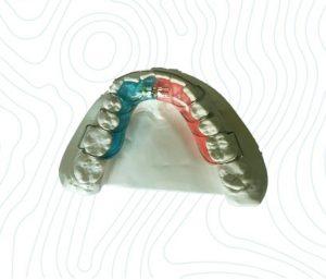orthodontic schwartz appliance