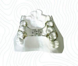 standard rapid palatal expander