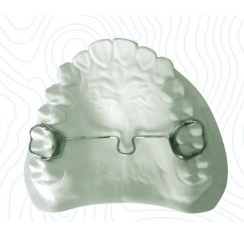 transverse palatal bar