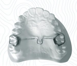 transverse-palatal-bar