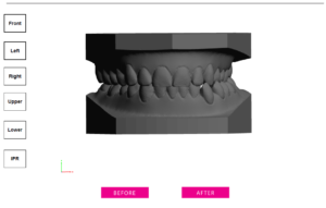 clear aligner before