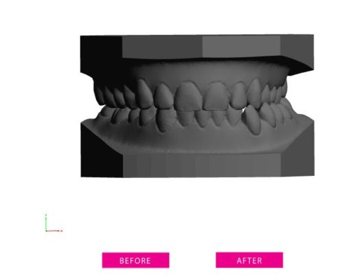 clear aligner treatment plan