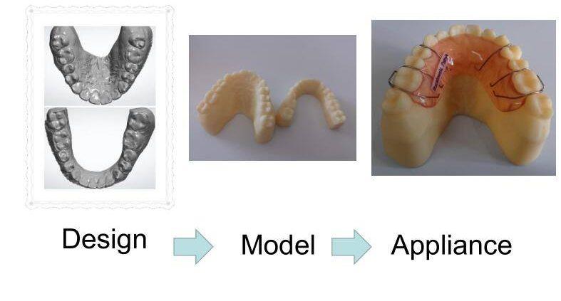 orthodontic appliance