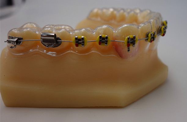clear retainer with brackets